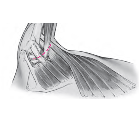 Latissimus Operation
